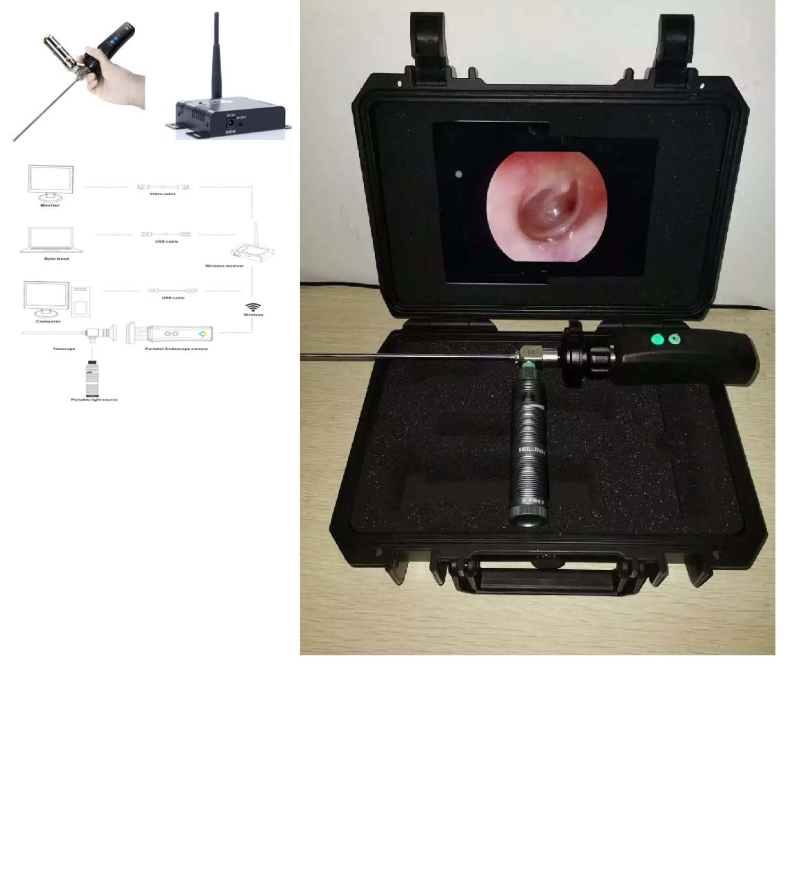 Máy nội soi di động loại cầm tay không dây (Wireless) loại kết nối với máy vi tính; máy Laptop và màn hình qua cổng HDMI