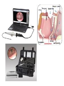 Nội soi chẩn đoán Tai Mũi Họng loại xách tay và cầm tay kết hợp với Laptop