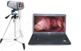 Máy soi cổ tử cung kết hợp với máy tính xách tay